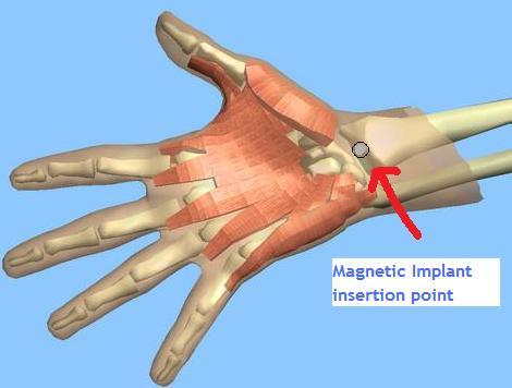 Hand implant
